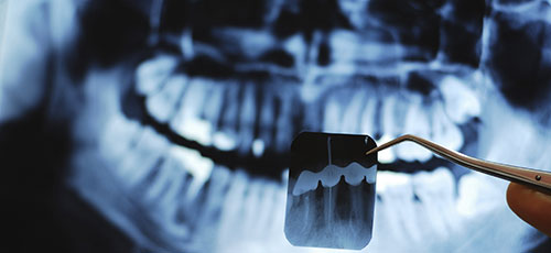 Xrays & Dental  Hygiene, Winnipeg Dentist
